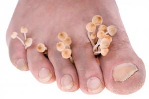 Причины возникновения грибковых инфекций