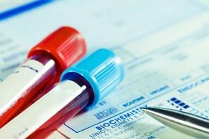 Разработан тест для диагностики туберкулеза