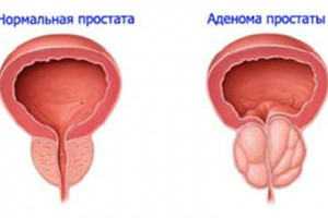 Как диагностируется аденома простаты?