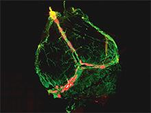 Иммунная система и головной мозг оказались связаны напрямую
