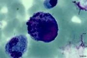 Цитомегаловирус ЦМВ — причины, симптомы, диагностика, лечение, осложнения и профилактика