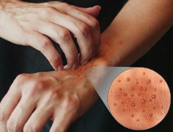 Помощь при дерматите