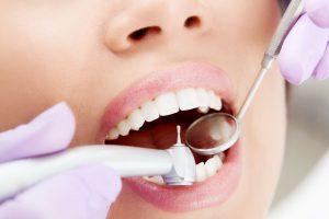 Зубной кариес: причины, признаки, стадии