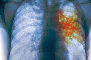 Ученые нашли способ лечения самой смертоносной формы туберкулёза