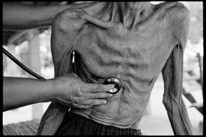 Выяснен подробный механизм действия этамбутола на возбудителя туберкулеза