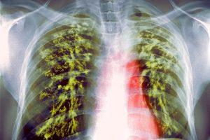 В Казахстане, жертвами эпидемии туберкулеза стали уже три человека