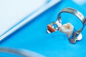 Применение коффердама в стоматологии