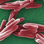 Российские ученые выявили опасные мутации туберкулезной палочки
