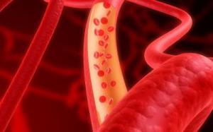 У мужчин с аутизмом идентифицирована делеция X хромосомы