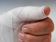 «Умный» бинт расскажет врачу о состоянии раны пациента
