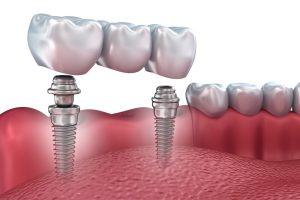 Как проходит процедура имплантации зубов?