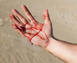 Эксперт рассказал, чем опасны кровотечения