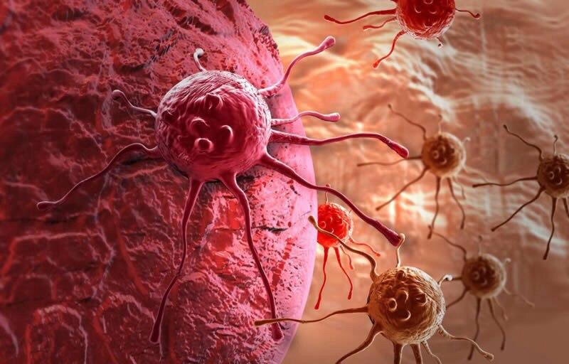 Разработан универсальный анализ, позволяющий диагностировать любой вид рака