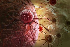 Пять малоизвестных признаков рака