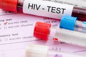 160 новых случаев ВИЧ инфекции в Оренбуржье