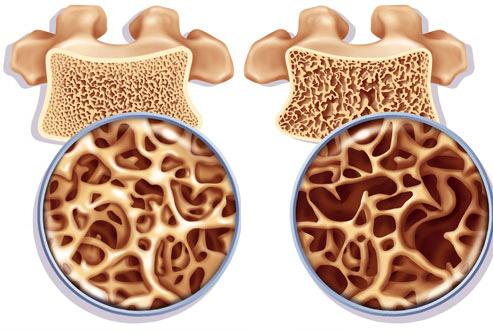 ВИЧ-инфицированные чаще страдают остеопорозом
