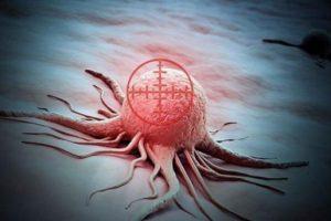 Лишний вес и онкология