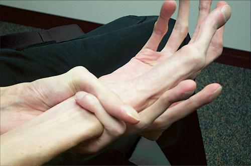 Лечение мышечных дистрофий