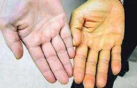 Вспышка гепатита А началась в селах Молдовы