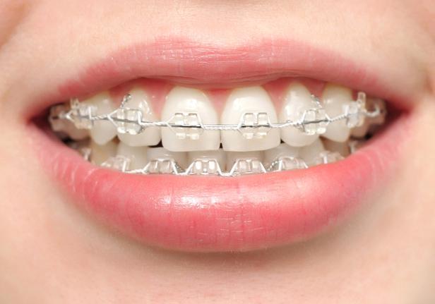 Брекеты на нижние зубы