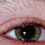 Причины блефарита