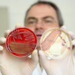 Острая кишечная инфекция зарегистрирована в школе в Хакасии