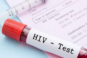 На Кубани случаи заболеваемости ВИЧ выросли на 109 %