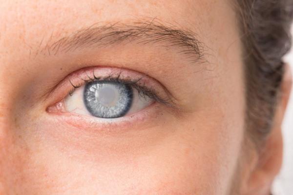 Глаукома возникает из-за проблем с иммунитетом