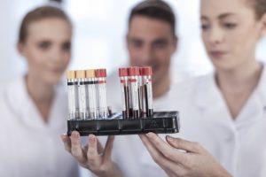 Более 20 ВИЧ-инфицированных выявлены в Забайкалье за первую неделю ноября