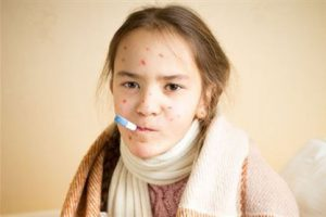 Лайфхак: как защитить себя от кори
