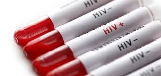 Секрет эффективной борьбы с ВИЧ – упрощение профилактики и оптимизация АРТ