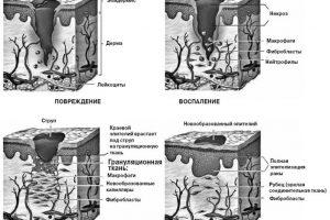 Очерки комбустиологии: борьба с инфекцией