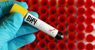 Второй человек в мире излечился от ВИЧ