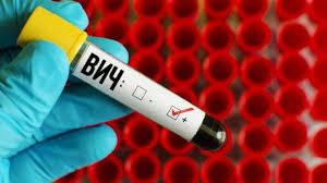 Исследователи нашли новый метод борьбы с ВИЧ