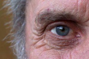 Состояние сосудов сетчатки может указать на развивающуюся болезнь Альцгеймера