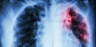 Ученые поняли, как повысить эффективность лечения туберкулеза