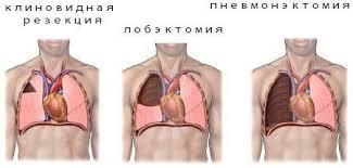 Ошибки, опасности и осложнения при операции резекции легкого по поводу туберкулеза