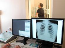 Генетические особенности делают некоторых людей беззащитными перед туберкулезом