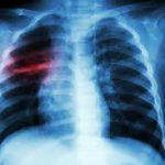 Лекарство против малярии собирается перевернуть лечение туберкулеза
