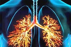 Победитель лёгочной эмболии