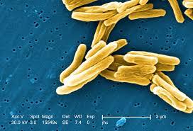 Исследователи поняли, почему «российский туберкулез» один из самых страшных