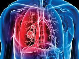 Специалисты приблизились к победе над туберкулезом, устойчивому к антибиотикам