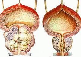 Хирургическое лечение доброкачественной гиперплазии предстательной железы: прошлое и настоящее