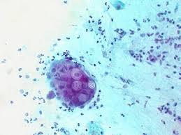 Экспериментальная вакцина остановит распространение хламидиоза