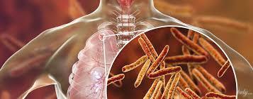 Туберкулез признали самой серьезной угрозой для человечества