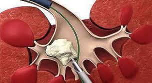 Функциональное состояние клеточных мембран у больных мочекаменной болезнью