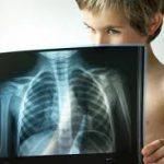 UNICEF: Каждые 39 секунд от пневмонии умирает один ребенок