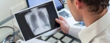 Британцы считают рентген устаревшим методом диагностики туберкулеза