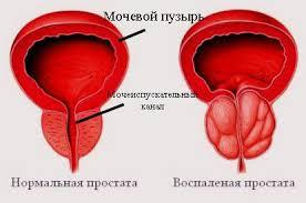 Состояние локального и системного гомеостаза в различных моделях хронического абактериального простатита