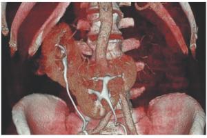 Результаты применения йопромида при выполнении непрямых брюшных КТ-аортографий в условиях реальной урологической практики